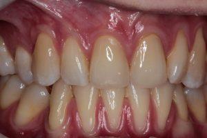 Fallstudie: Implantate und chronische Parodontitis