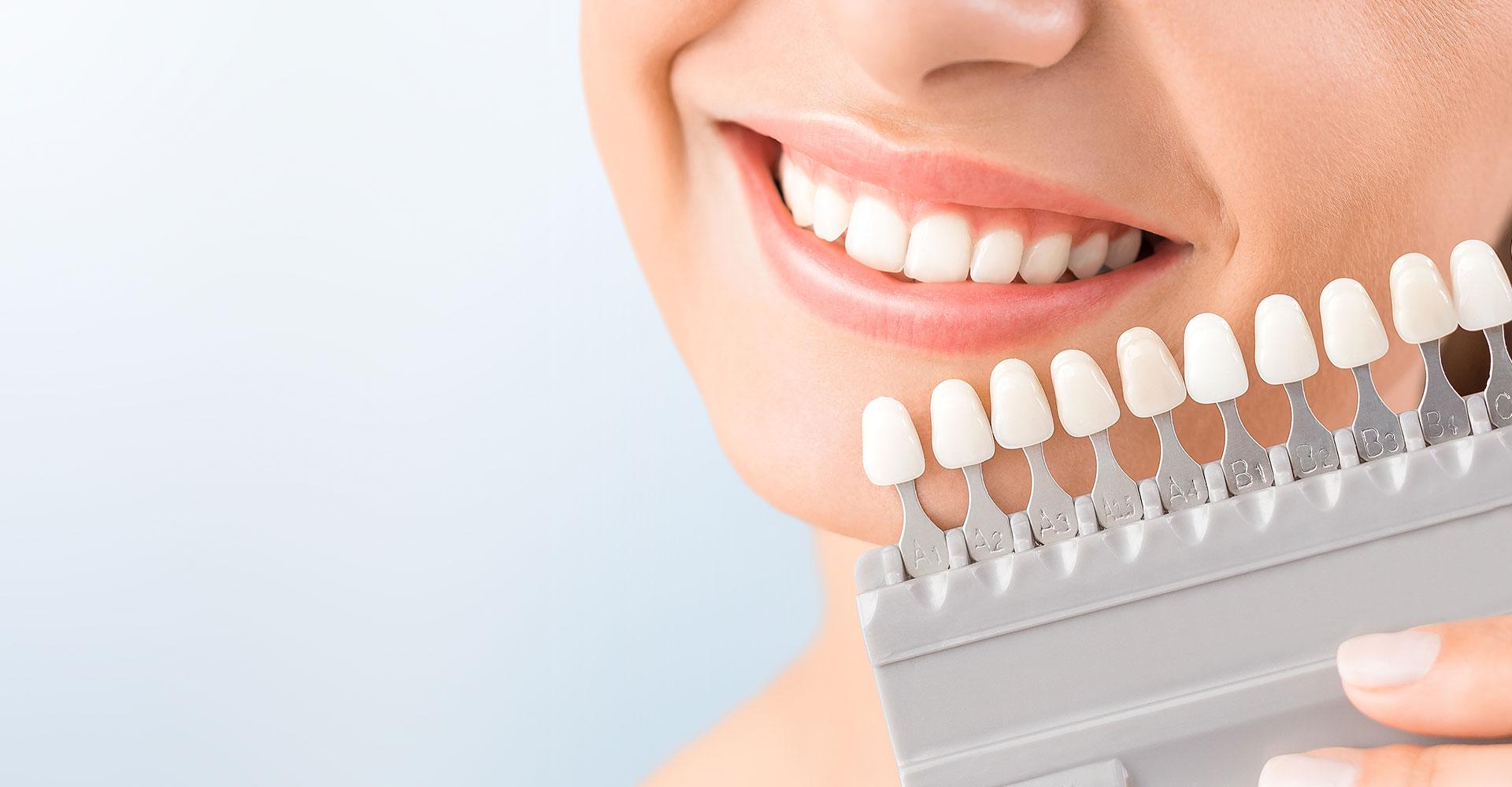 Ästhetik - Zahnärztliche Praxisklinik Dr. Borrmann